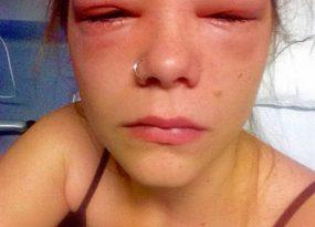 Sử dụng thuốc nhỏ mắt không đúng cách rất có nguy cơ mắc bệnh mù lòa vĩnh viễn